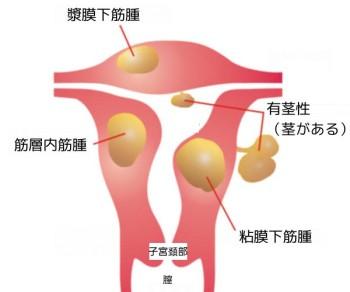 子宮内部のイラスト