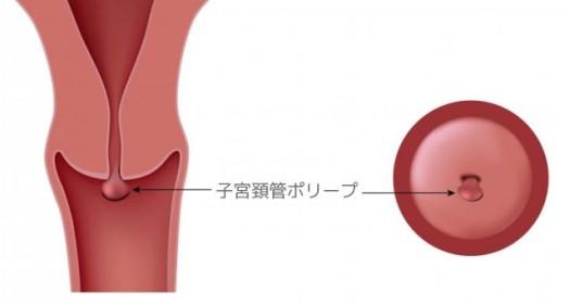 外来の摘出手術で治療できます